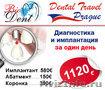 Диагностика и имплантация зубов в Праге